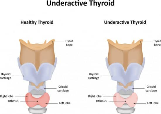 hypothyroid symptoms